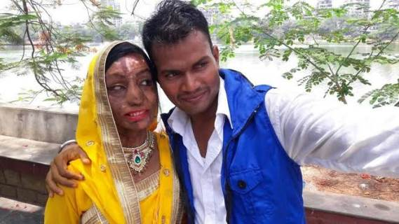 ACID ATTACK SURVIVOR, AFTER UNDERGOING 17 SURGERIES ON HER FACE MARRIES THE LOVE OF HER LIFE